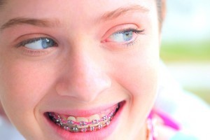 teen braces smile