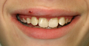 Glen Oaks Dental was able to bond the tooth fragments to the intact teeth, restoring the patient's smile.