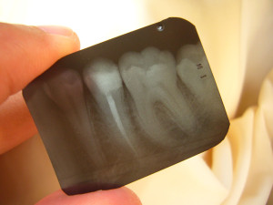 Tooth xRay of a root canal
